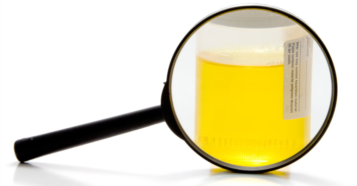 Urine Sample and magnifying glass